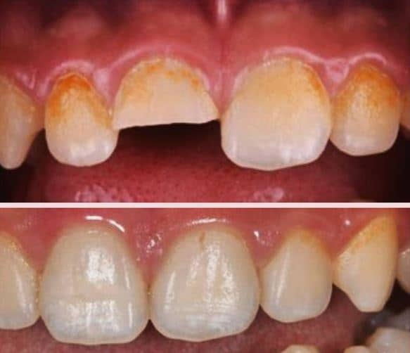 Composite restoration for frontal tooth