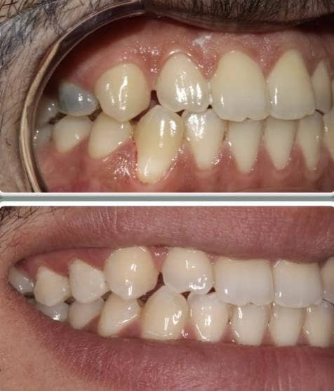 Root canal treatment and composite filling