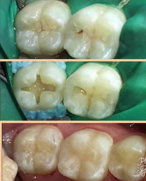 cavity restoration